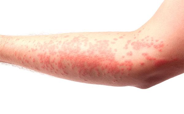 Sintomas de la alergia a la procesionaria del pino